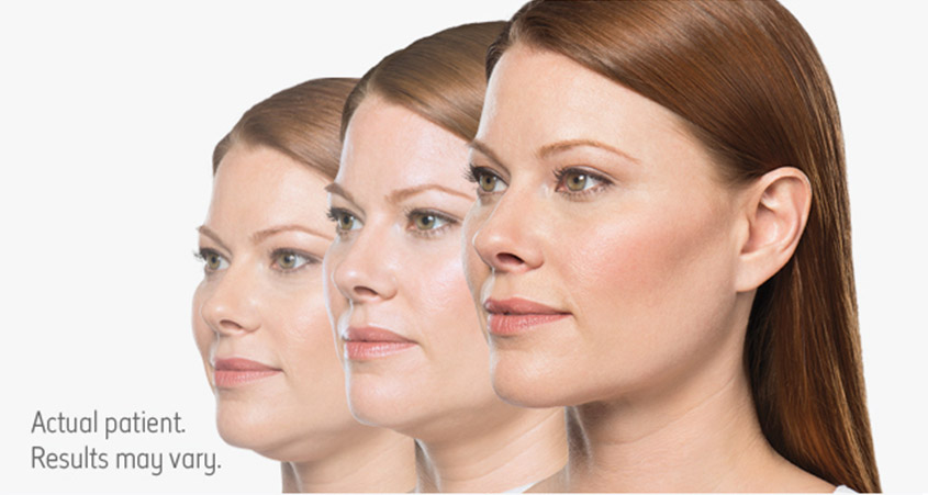 Kybella Treatment in Pittsfield MA