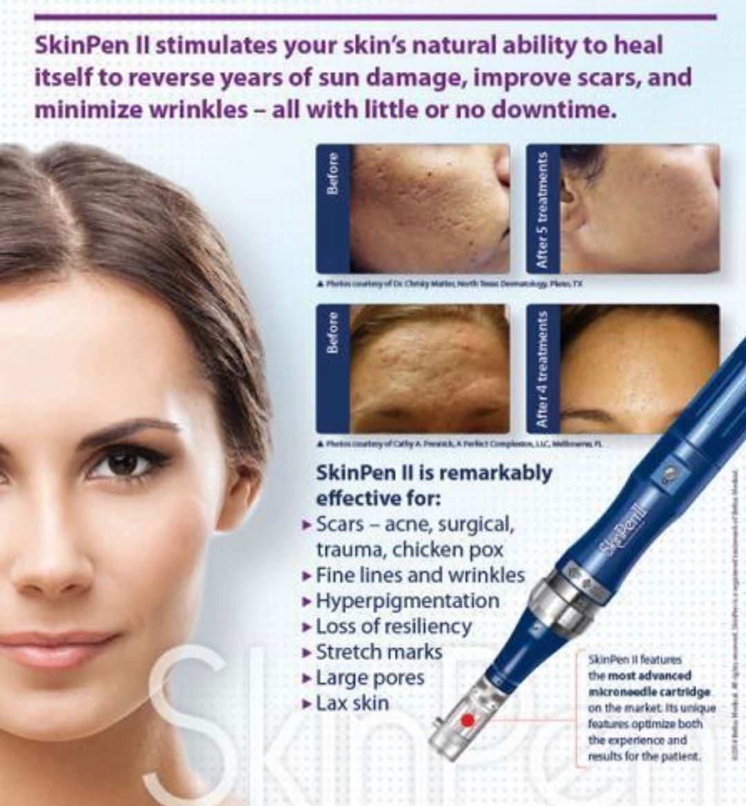 SkinPen Micro-Needling - Pittsfield, MA