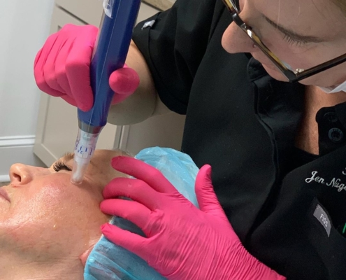 MicroNeedling Pittsfield, MA