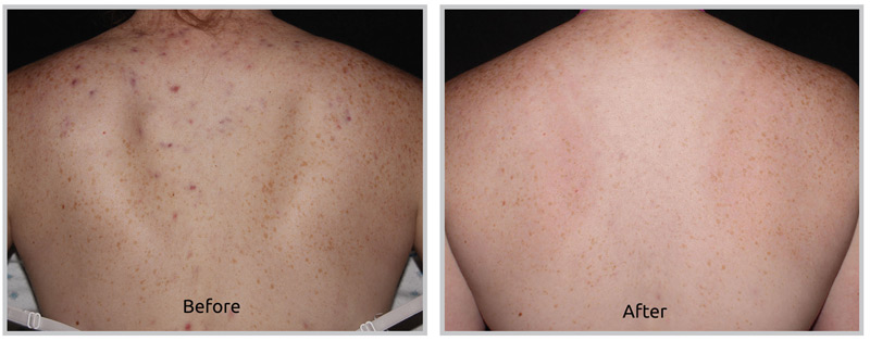 Forever Clear BBL for Acne - Pittsfield, MA
